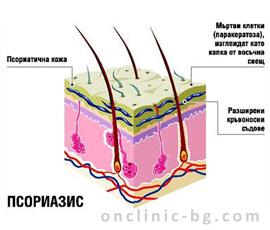 Лечение на псориазис без хормони